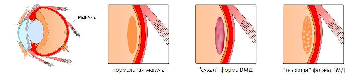 Возрастная макулодистрофия (ВМД)- что это такое и чем опасно